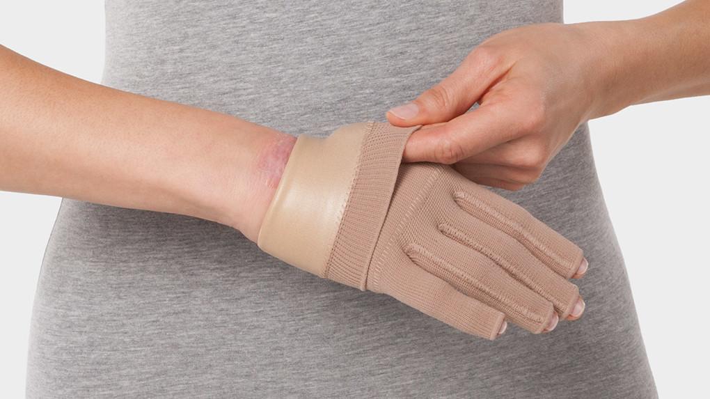 Frau trägt Kompressionshandschuh mit eingenähtem Silon®-TEX