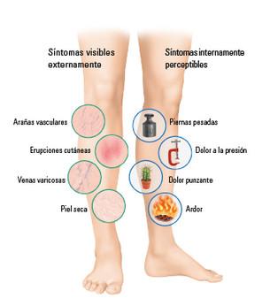 Síntomas internos y externos en las piernas