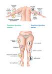 Graphique Symptômes lipœdème