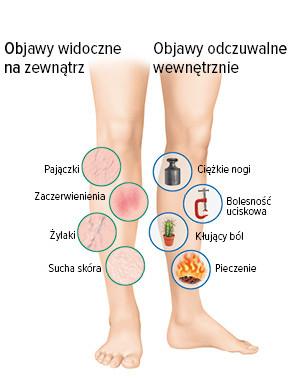 Symptomy wewnętrzne i zewnętrzne