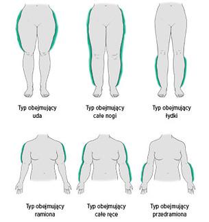 Grafika obrazuje typy obrzęku lipidowego