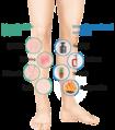 Leg symptoms, internal and external