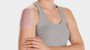 Frau trägt ein Juzo Scarpad auf ihrer Narbe auf dem Oberarm