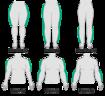 Grafik zeigt die Typen des Lipödems