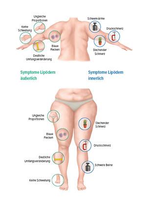 Grafik Symptome Lipödem