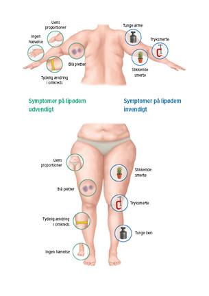 Grafik med symptomer på lipødem
