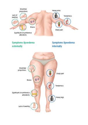 Diagram Lipoedema symptoms