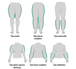 El gráfico muestra los tipos de lipedema