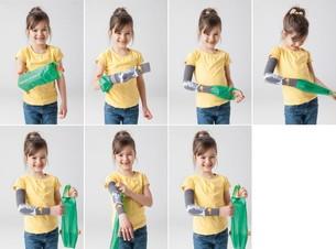 La petite fille utilise Arion Easy-Slide Bras pour enfiler le vêtement de compression