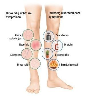 Symptomen in de benen innerlijk en uiterlijk