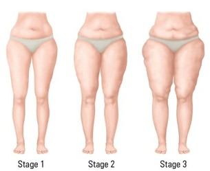 Diagram showing the stages of lipoedema