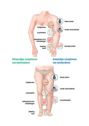 De symptomen van een lymfoedeem