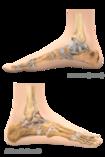 Fußansichten von zwei Seiten