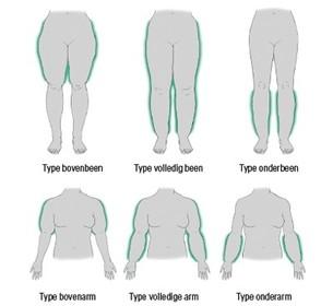 Grafische weergave toont verschillende lipoedeemtypes