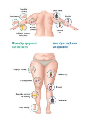 Grafische weergave symptomen lipoedeem
