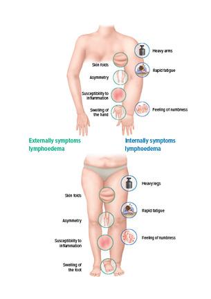 The symptoms of lymphoedema