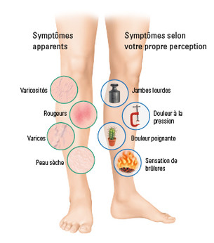 Symptômes internes et externes au niveau des jambes